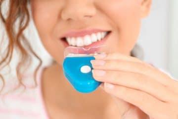 miglior kit sbiancamento denti